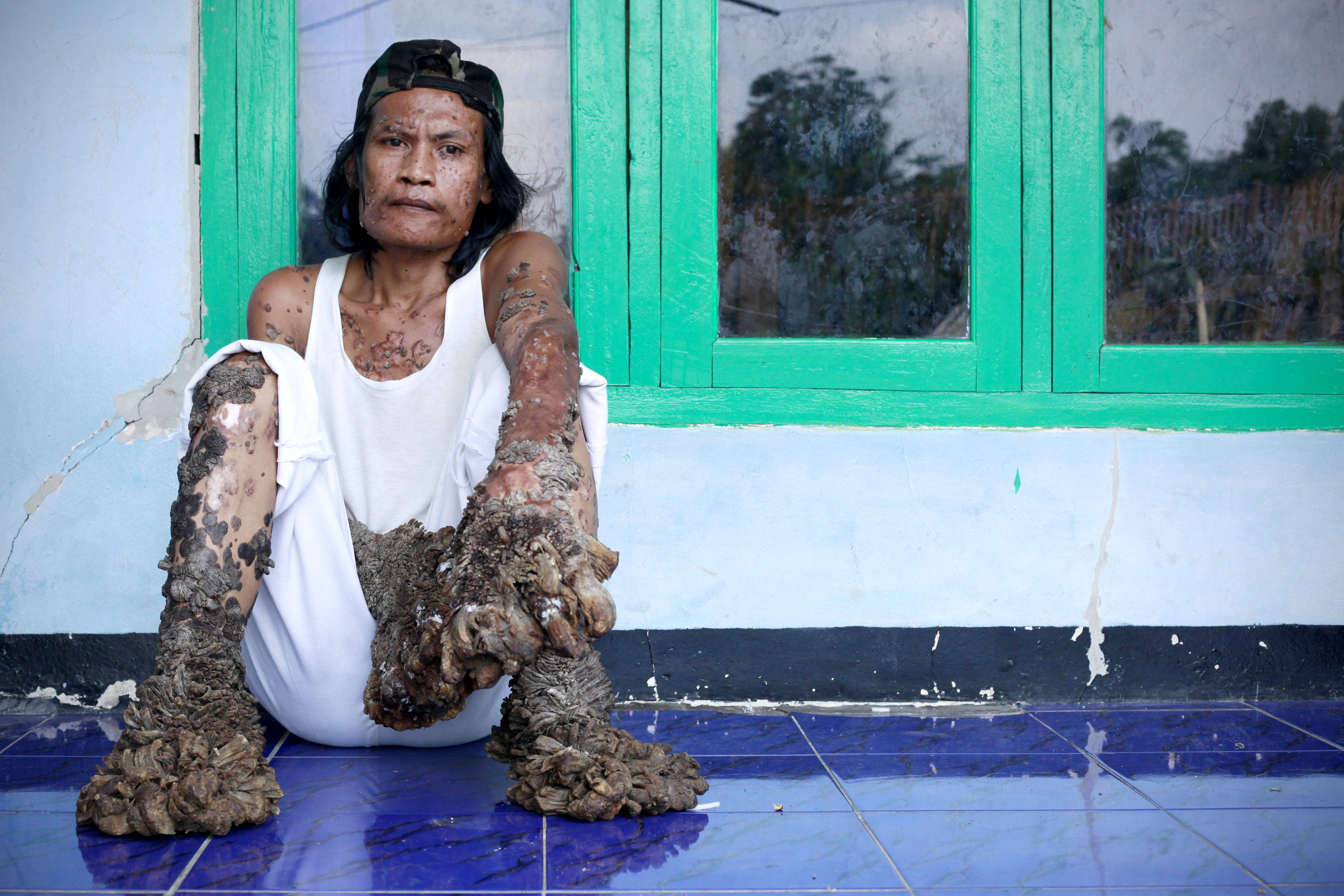 "Indonesian ""Tree Man"" Continues Treatment For Human Papilloma Virus"
